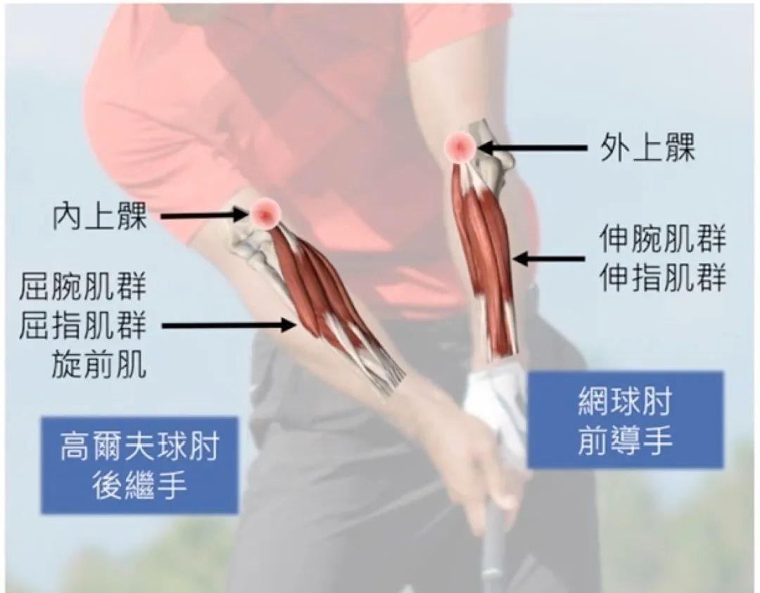高尔夫的手腕部位伤害!
